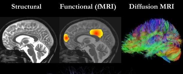 Разновидности МРТ мозга