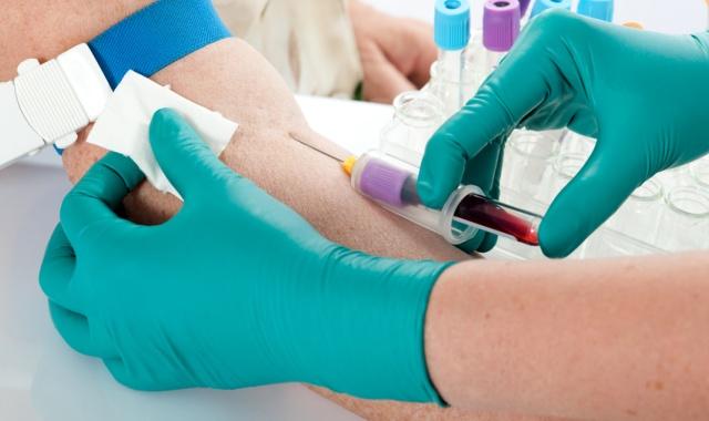 Анализ крови на креатинин перед КТ