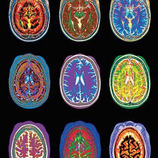 Перфузионнная МРТ