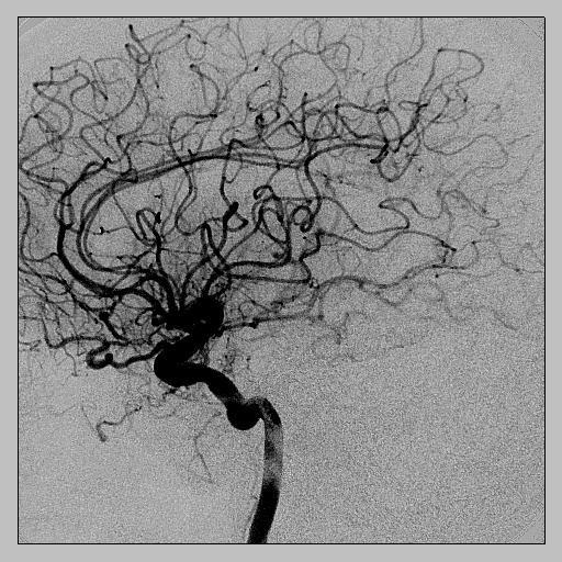 КТ-ангиография мозга