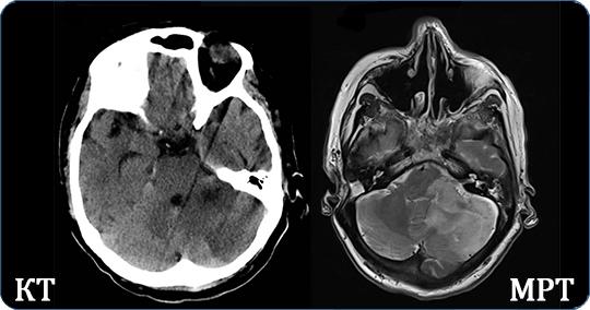 Разница между КТ и МРТ мозга