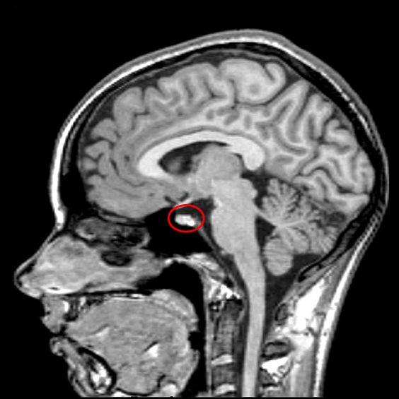 МРТ гипофиза