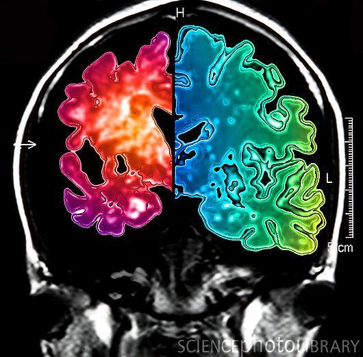 КТ, МСКТ, МРТ головы и шеи: что показывает, где сделать