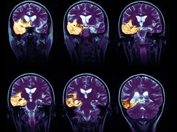 МРТ при энцефалите