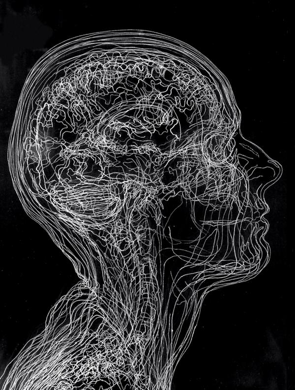 МРТ нервов головного мозга