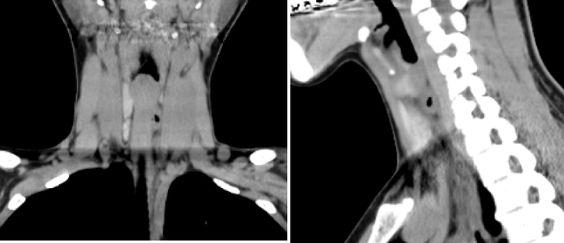 КТ щитовидной железы