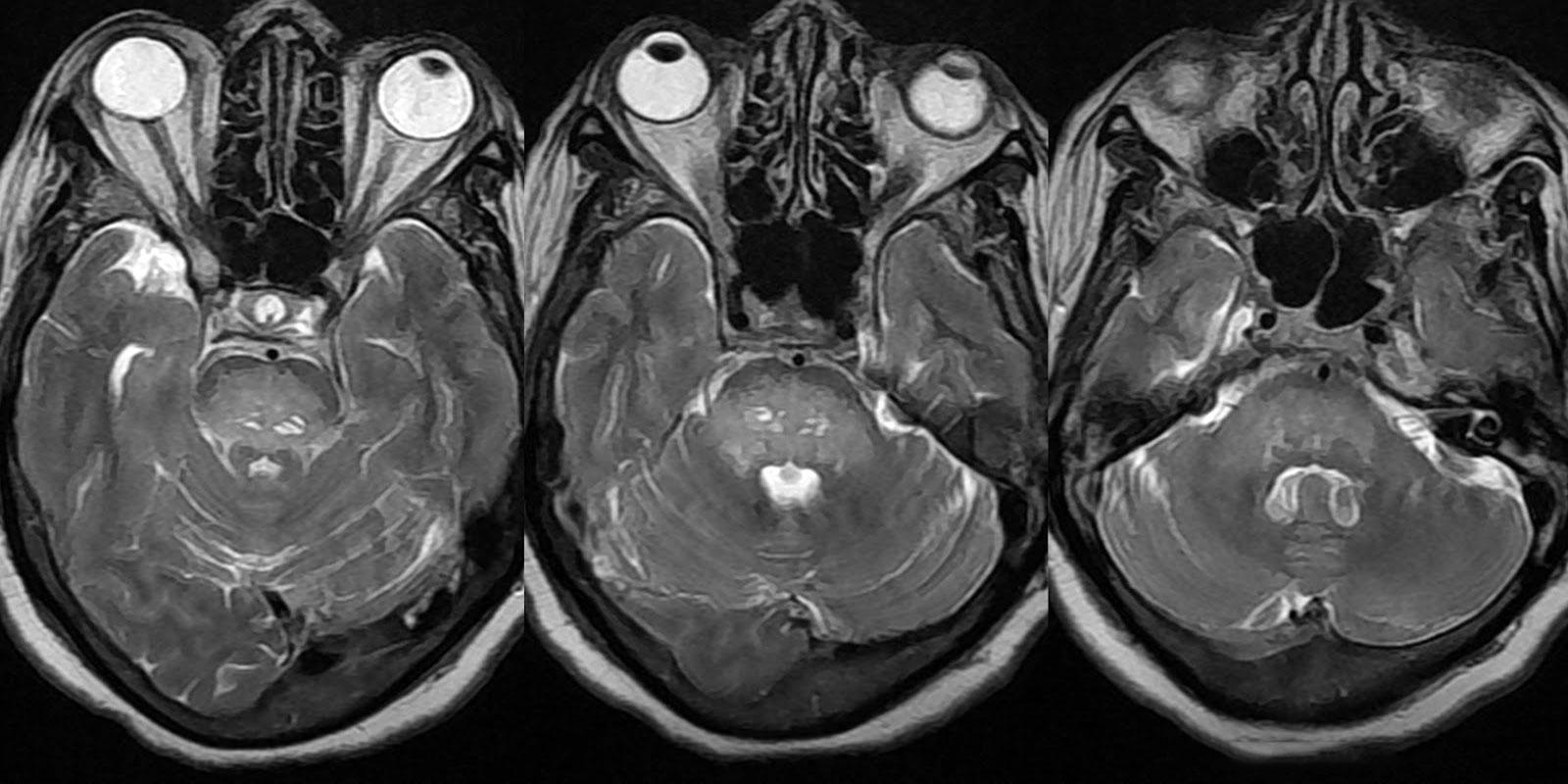 Показания к МСКТ мозга