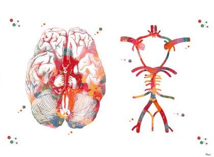 Что покажет/зачем делать МРТ головы