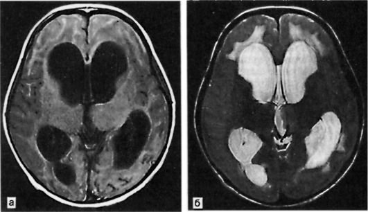 МРТ при гидроцефалии
