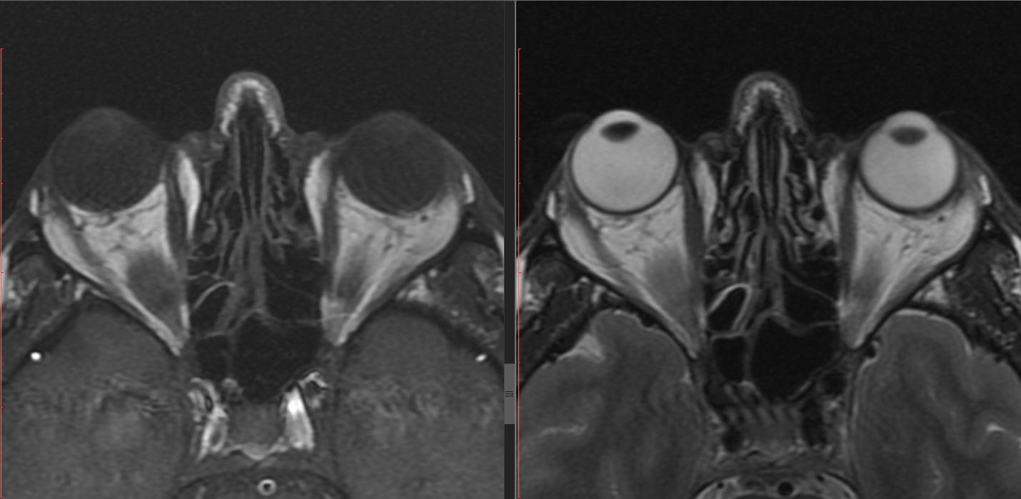 МРТ зрительных нервов