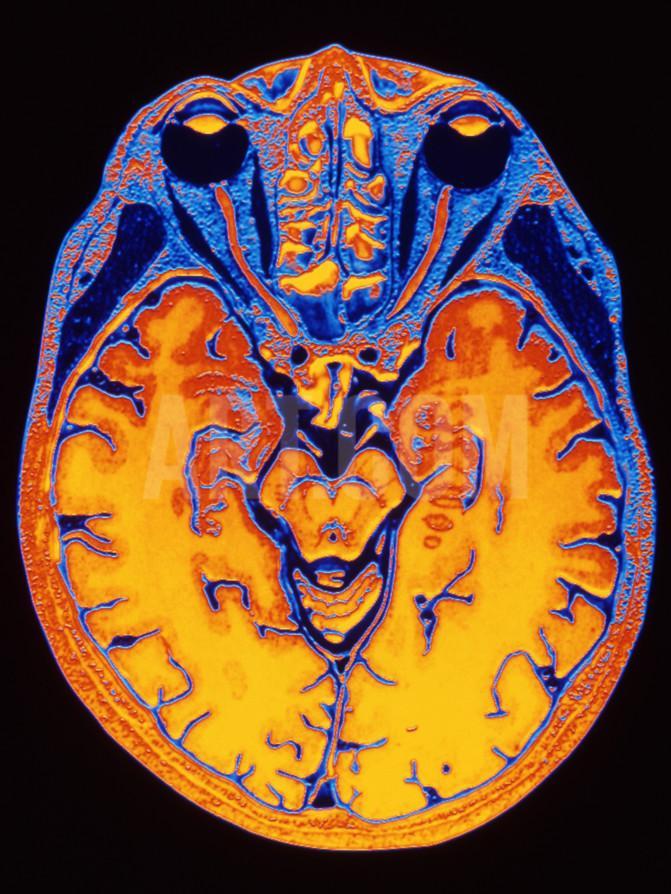 МРТ мягких тканей головы