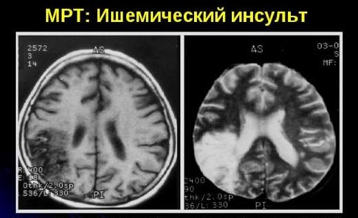 Ишемический инсульт на МРТ