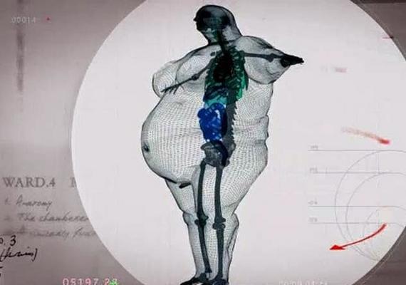 МРТ для пациентов с большим весом
