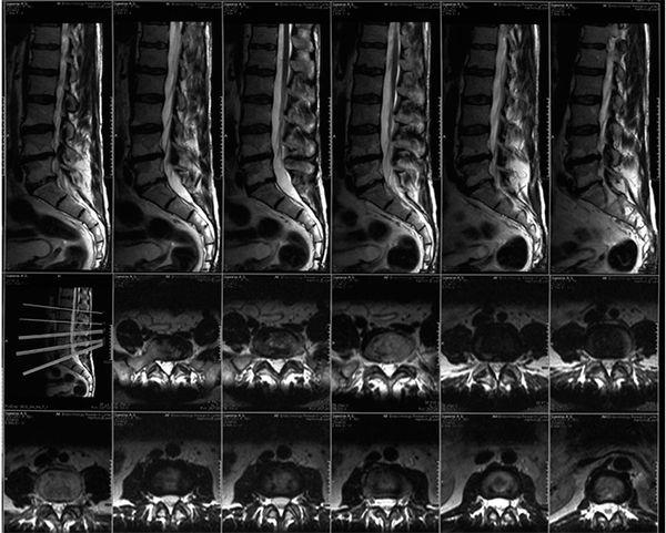 МРТ позвоночника с контрастом