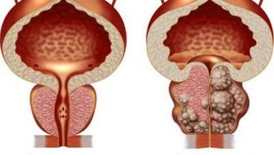 КТ предстательной железы