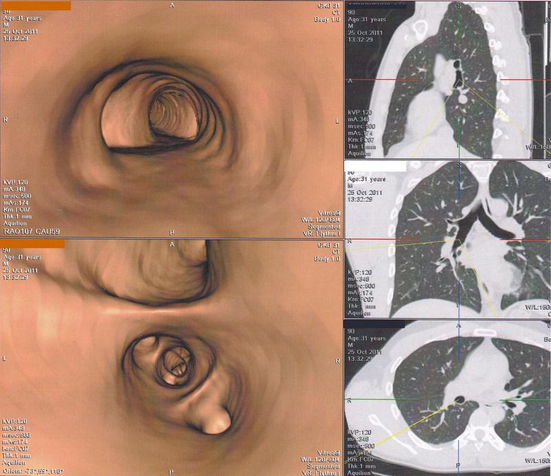 Виртуальная бронхоскопия