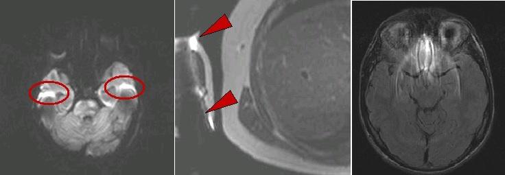 Артефакты от металла на МРТ