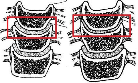Артроз шейных позвонков