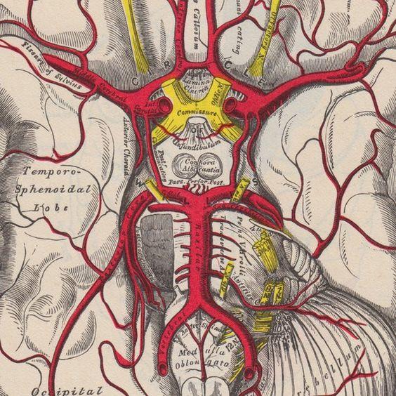 МРТ позвоночных артерий