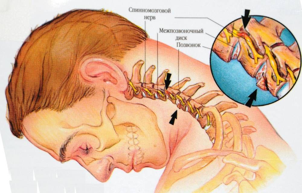 Типичные травмы ШОП