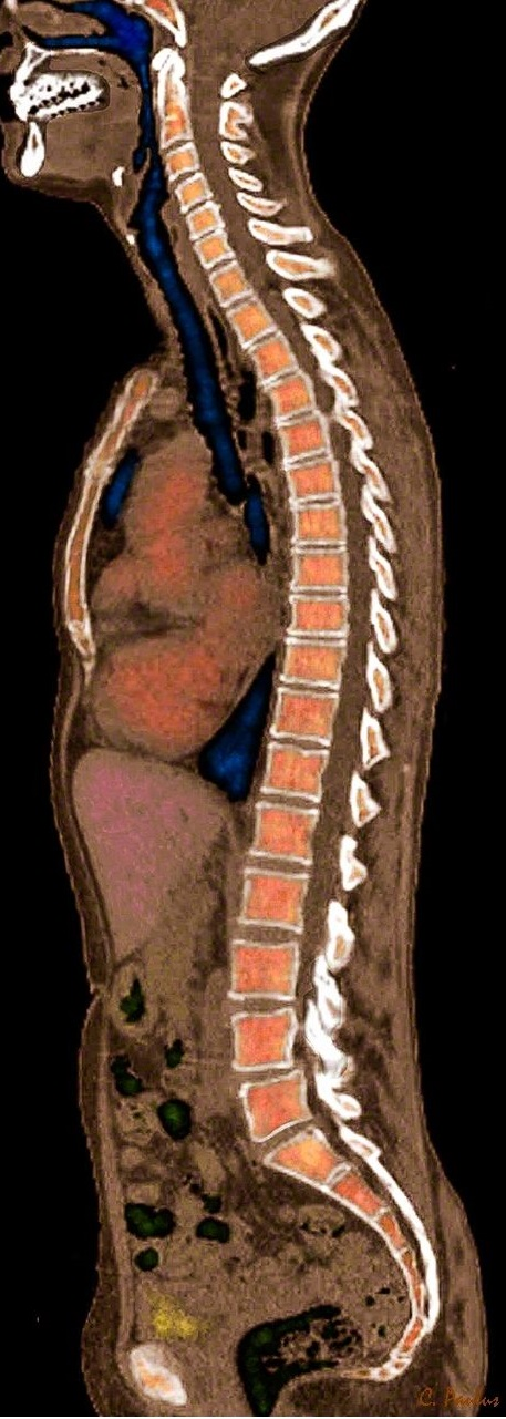 Как работает МРТ и его диагностические возможности