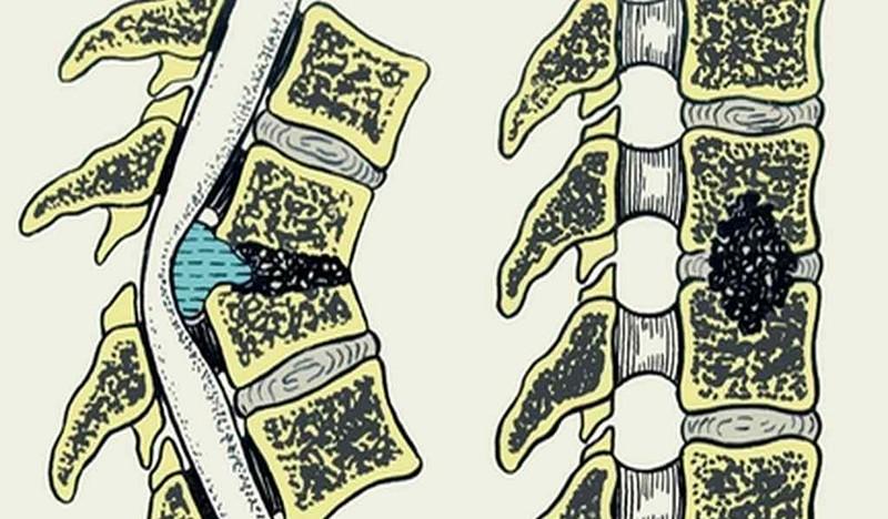 Воспаление позвоночника