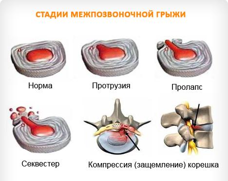 Грыжа диска МРТ