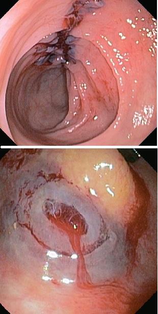 Осложнения колоноскопии