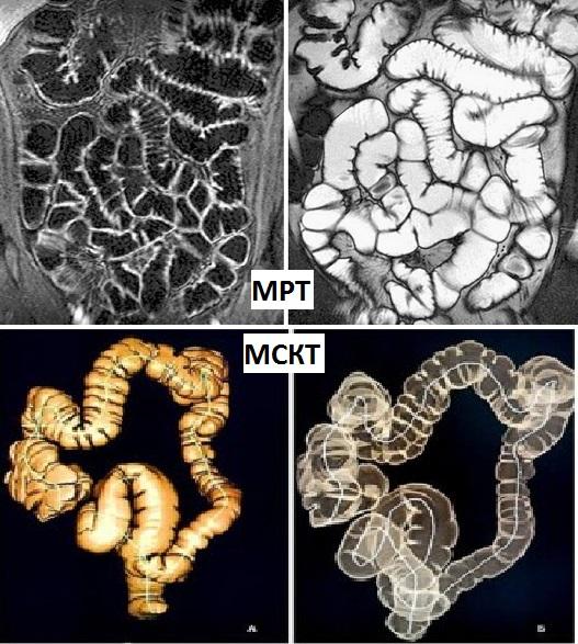 МРТ или КТ кишечника, виртуальная колоноскопия