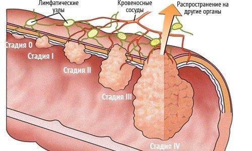 МРТ толстого кишечника