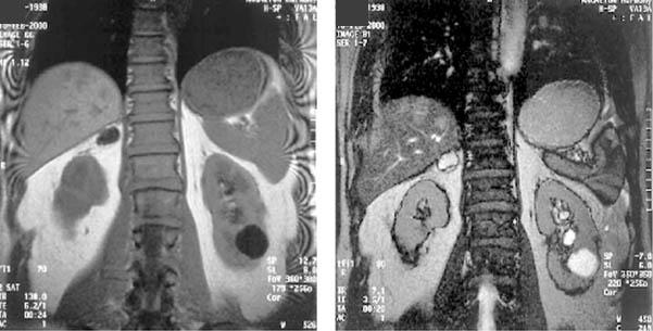 МРТ надпочечников с контрастом