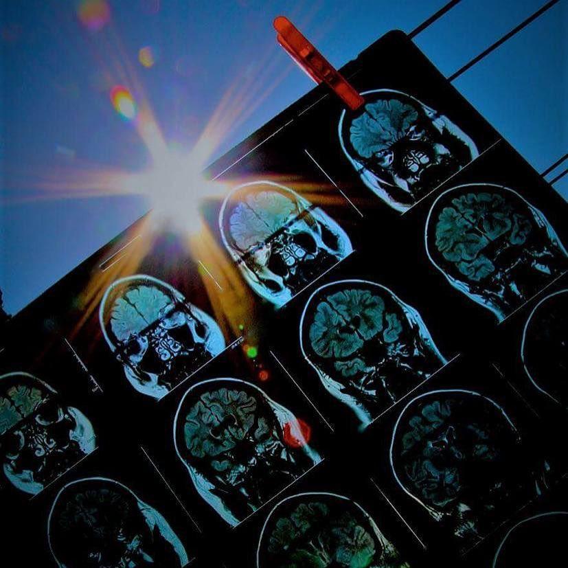 Как просмотреть снимки МРТ