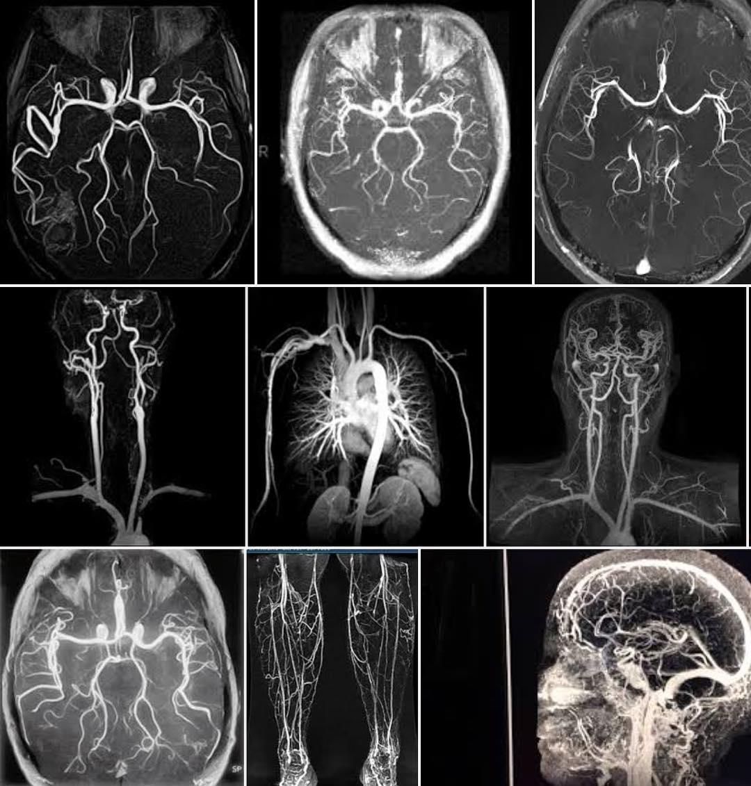 МРТ сосудов, что такое МР ангиография