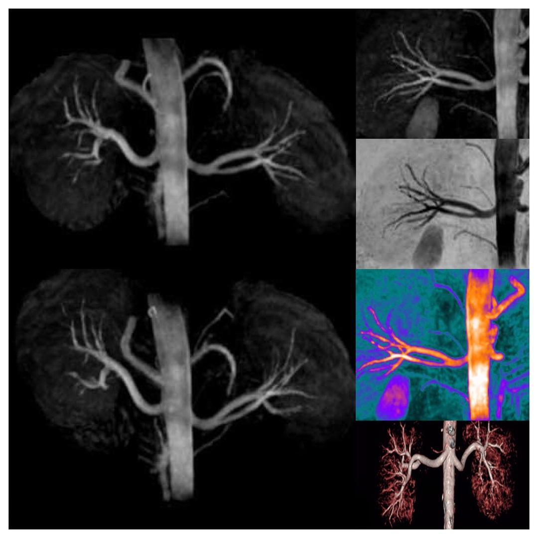МРТ полой вены
