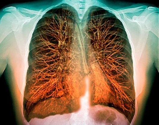 КТ или рентген легких