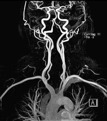 МР ангиография сосудов головного мозга и шеи