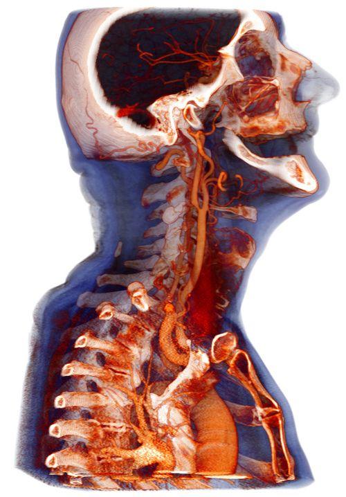 МРТ соных и позвоночных артерий