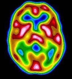 МР-перфузия