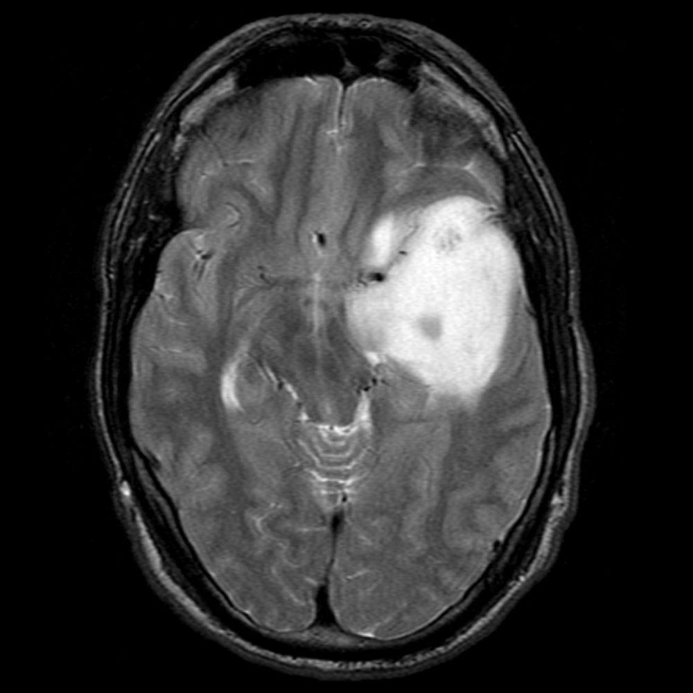 Снимки МРТ и КТ. Нейронально-глиальные опухоли