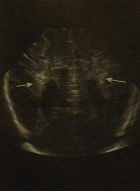 Снимки МРТ и КТ. Перивентрикулярная лейкомаляция