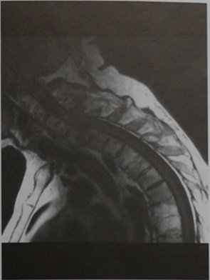 Снимки МРТ и КТ. Переломы позвоночника, анкилозирующий спондилит