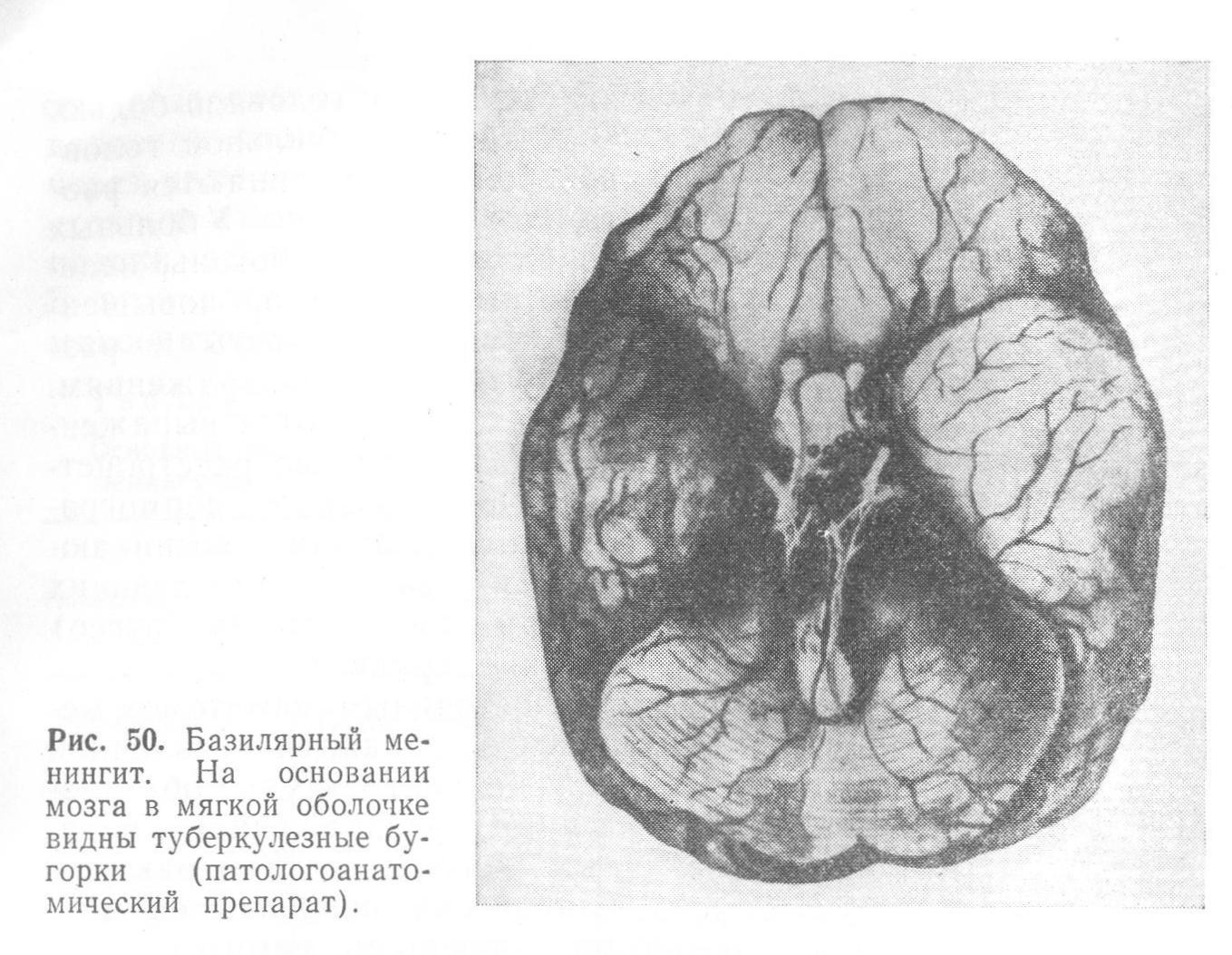 Снимки МРТ и КТ. Туберкулез ЦНС