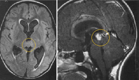 Снимки МРТ и КТ. Опухоли шишковидной железы