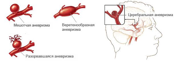 Снимки МРТ и КТ. Веретенообразная аневризма