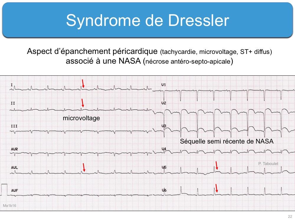 Снимки МРТ и КТ. Постинфарктный перикардит, синдром Дресслера