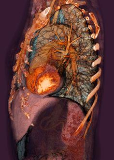 МРТ грудной клетки