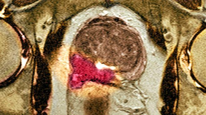 МРТ простаты с контрастом