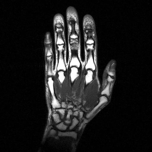 МРТ снимок кисти руки