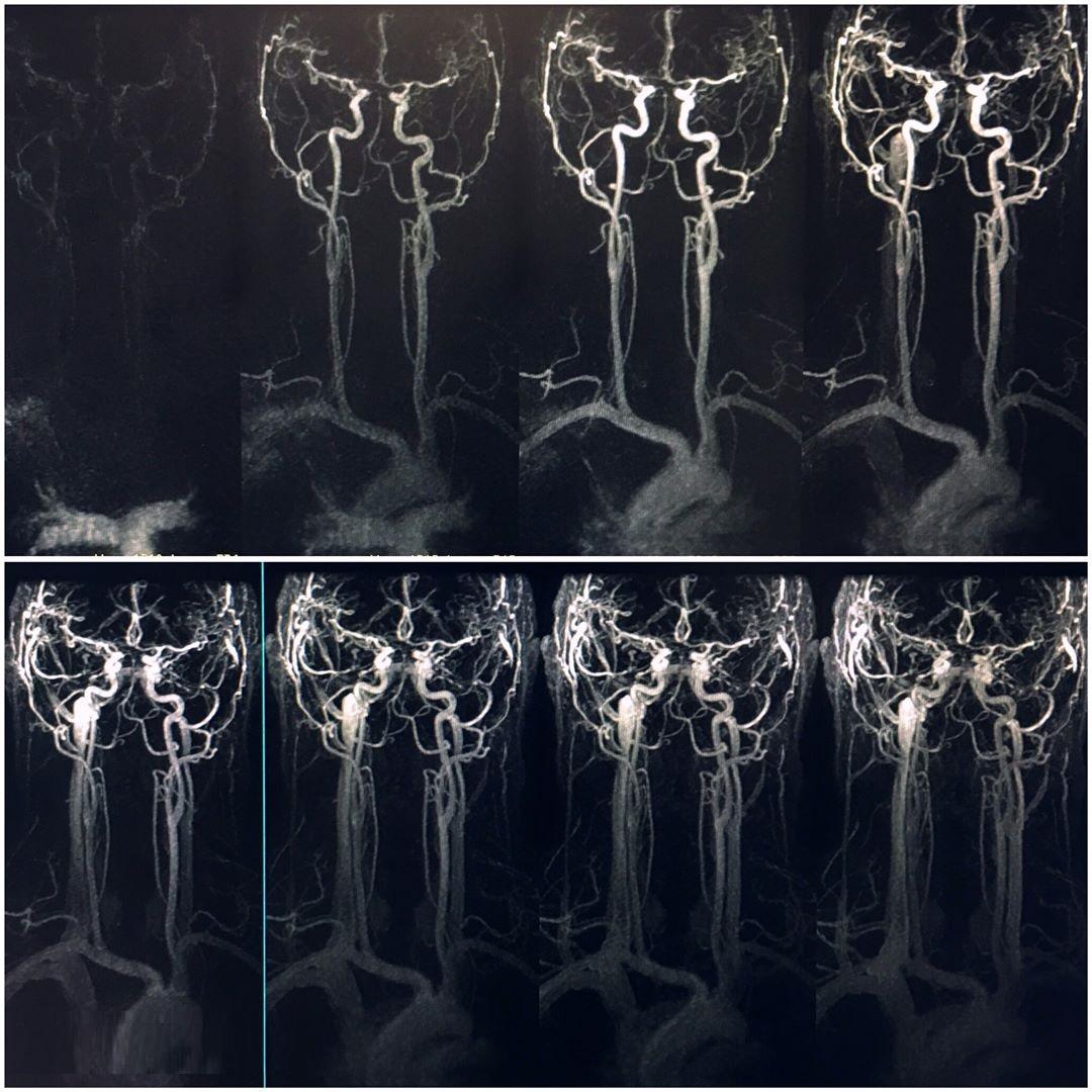 МР-ангиография шеи