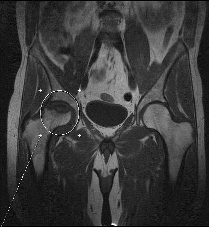 МРТ при болезни Пертеса